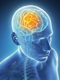Dor de cabeça do Megrim/ Imagens de Stock Royalty Free