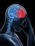Dor de cabeça do Megrim/ Foto de Stock