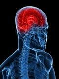 Dor de cabeça/enxaqueca Imagem de Stock