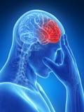 Dor de cabeça do Megrim/ Imagem de Stock Royalty Free