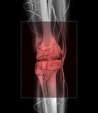 Dor do joelho e de músculo Fotografia de Stock Royalty Free