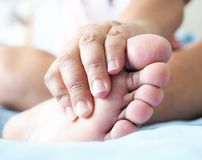Dor do pé, tendões, músculos, inflamação do pé imagem de stock
