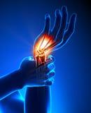 Dor do pulso - detalhe ilustração do vetor