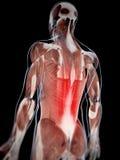 Dor lombar de Musculare ilustração stock