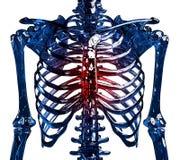 Dor torácica de esqueleto imagens de stock