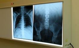 Dordzeniowa x promienia klatka piersiowa i obniża z powrotem Zdjęcie Royalty Free