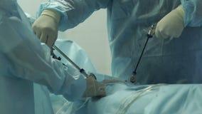 Dos cirujanos hacen a la mujer de la cirugía metrajes