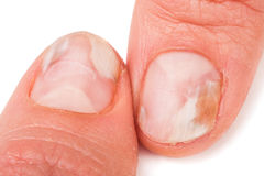 Dos fingeres de la mano con un hongo en los clavos aislaron el fondo blanco Fotografía de archivo