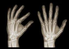 Dos manos en radiografía Foto de archivo libre de regalías