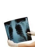 Dos manos que llevan a cabo imagen de la radiografía Imagenes de archivo