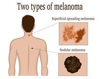 Dos tipos de melanoma Fotografía de archivo libre de regalías