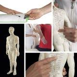 Dostawać akupunktury traktowanie dla backache kolażu zdjęcia stock