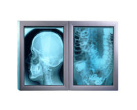 Double x-ray minitor,isolated Royalty Free Stock Images