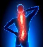 Épine dorsale blessée de mâle - douleur de vertèbres Photos libres de droits