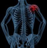 Douleur d'épaule Photo stock
