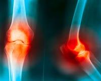 Douleur d'articulation de genou Photos libres de droits