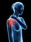 Douleur dans l'articulation de l'épaule Photographie stock