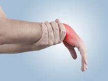 Douleur dans un poignet d'homme Photographie stock libre de droits