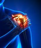 Douleur d'épaule - détail illustration de vecteur