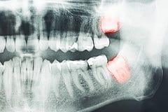 Douleur de dents de sagesse Images libres de droits