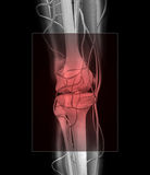 Douleur de genou et de muscle Photographie stock libre de droits