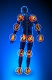Douleur de joints - plein chiffre illustration de vecteur