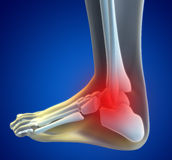 Douleur de pied Image libre de droits