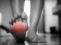 Douleur femelle noire et blanche de pied, concept de soins de santé photo stock