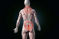 Douleurs de dos anatomiques de vision douleur inférieure arrière Photos libres de droits