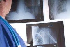 Doutor & raios X Fotografia de Stock