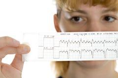 Doutor fêmea com cardiogram imagem de stock