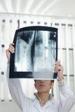 Doutor fêmea com radiograph Imagem de Stock