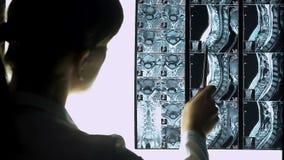 Doutor fêmea que aponta ao mri da espinha do paciente que diz sobre a doença aos internos vídeos de arquivo