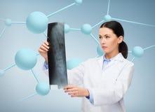 Doutor fêmea sério que olha o raio X fotografia de stock