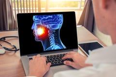 Doutor ou dentista que olham um raio X da cabe?a do cr?nio 3D com dor nos dentes Conceito da radiologia foto de stock royalty free