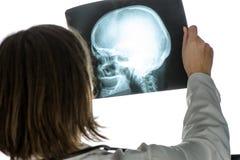 Doutor que analisa a imagem de seleção humana do raio X do crânio Fotos de Stock