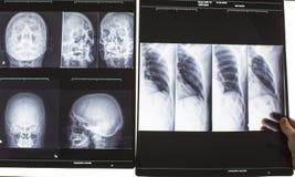 Doutor que analisa o raio X Foto de Stock Royalty Free