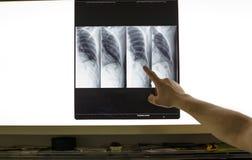 Doutor que analisa o raio X Fotografia de Stock Royalty Free
