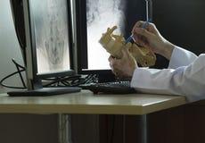 Doutor que demonstra o modelo da espinha lombar imagem de stock