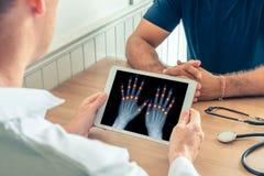 Doutor que guarda uma tabuleta digital com raio X das m?os do paciente Dor nas jun??es dos dedos Conceito da osteodistrofia imagens de stock royalty free