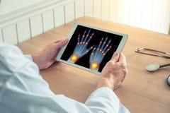 Doutor que guarda uma tabuleta digital com raio X das m?os Dor nas jun??es dos dedos e dos pulsos Conceito da osteodistrofia imagens de stock royalty free