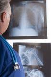 Doutor que olha raios X fotografia de stock royalty free