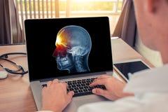 Doutor que olha um portátil com raio X do crânio e da dor na parte dianteira da cabeça Dor de cabe?a da enxaqueca ou conceito do  fotos de stock