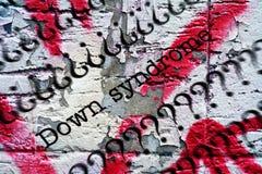 Down Syndrome Imagen de archivo