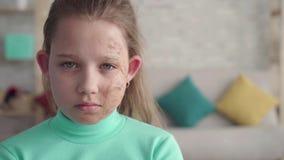 Dramatisch geschoten portret van een droevig, vermoeid meisje met een tekort of een gebrand gezicht stock footage