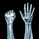 Dramatized x ray of two hands on black Royalty Free Stock Images