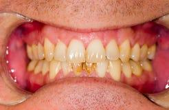Drawbacks of Smoking. Dental plaque on denture, sign of smoking habits Stock Image