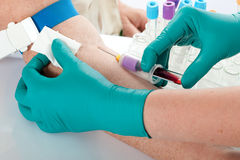 Drawing Blood. Nurse draws blood for a medical test royalty free stock photo