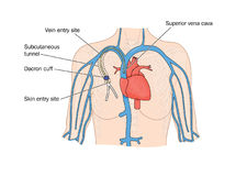 Drawing of catheter insertion into heart. Vector drawing of heart, showing subcutaneous tunnel and catheter entering superior vena cava Stock Photos