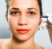 Drawing lines for facial plastic surgery Royalty Free Stock Photos